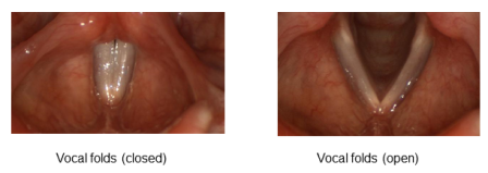 Vocal Folds web small