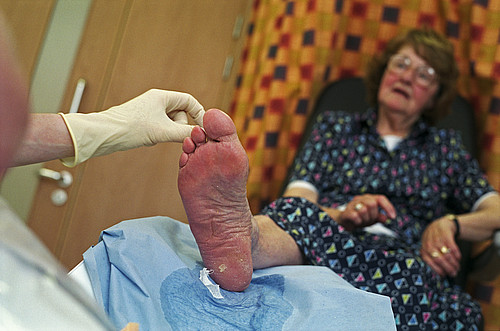 Podiatrist working with an elderly lady's foot